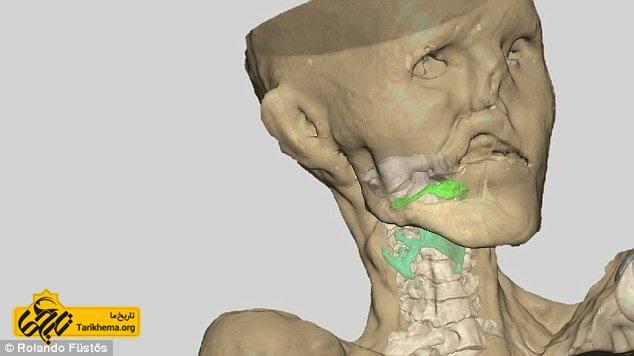 عکس تصویر بازسازی شده برای تشخیص صدای اوتسی %d8%a7%d9%88%d8%aa%d8%b3%db%8c Tarikhema.org