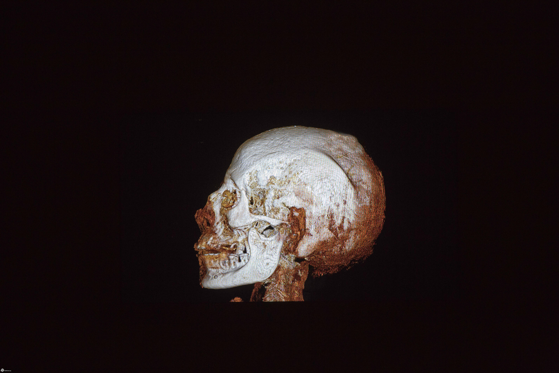 مصریان باستان هم بهاضافه وزن و کمتحرکی دچار بودهاند