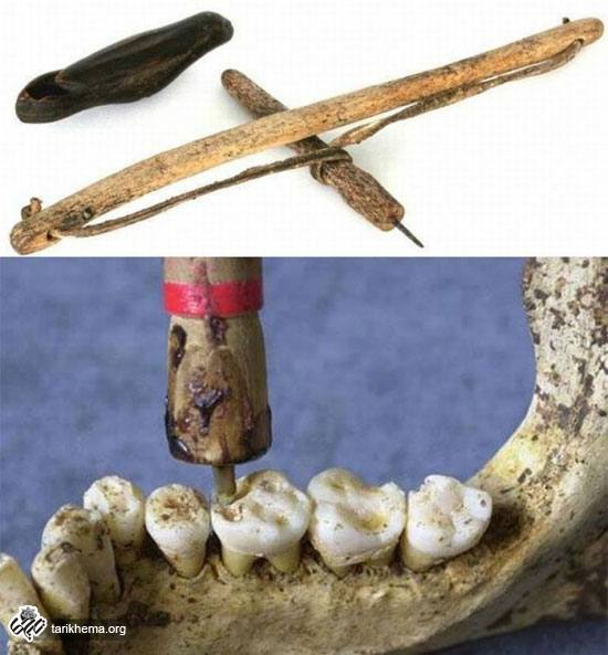 مته دندانپزشکی اختراع باستانی