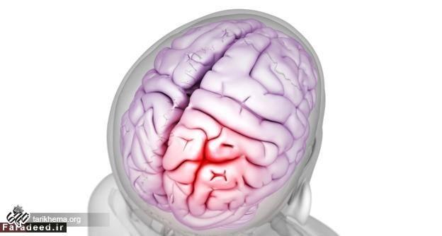 چرا گذشتگان، مغزهای همدیگر را سوراخ میکردند؟!