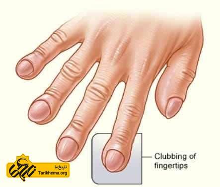 انگشت چماقی