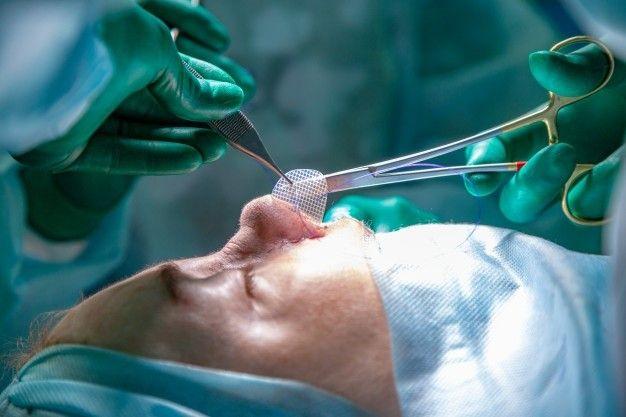 عمل بینی ترمیمی با دکتر تهران بیوتی