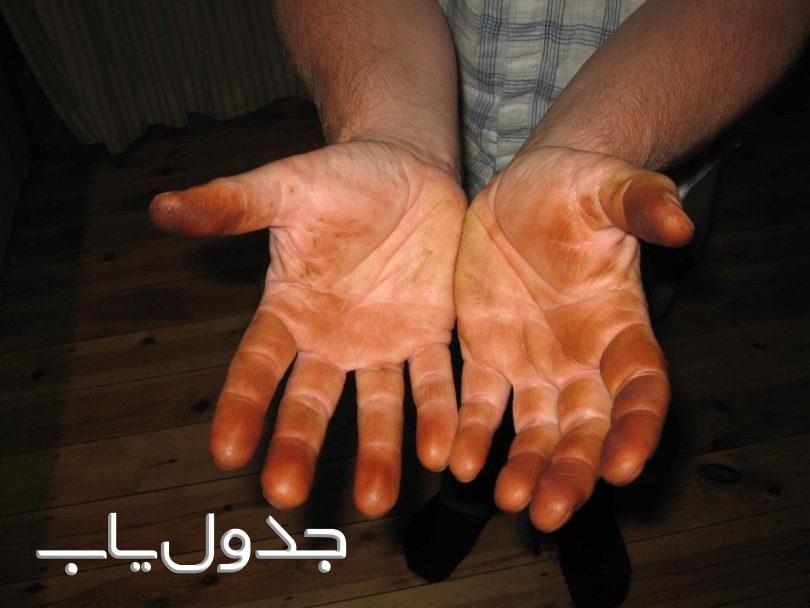 چگونه لک بادمجان و گردو را از روی دست پاک کنیم؟
