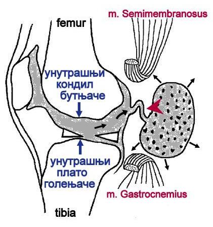 File:Valvular mechanism of Baker cyst.png